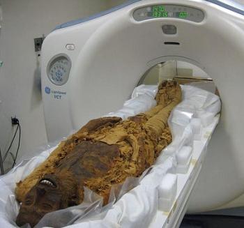 MummiesAtherosclerosis3