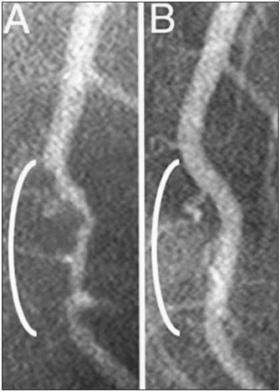 ArteryReopeningPlantDiet2