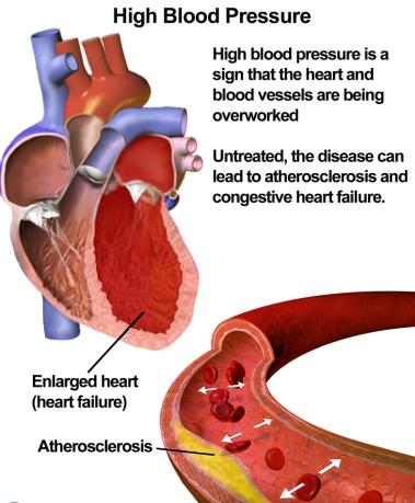 HypertensionAtherosclerosis