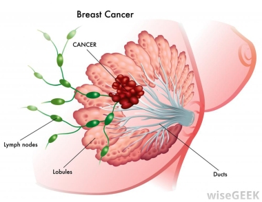 BreastCancerTypes2