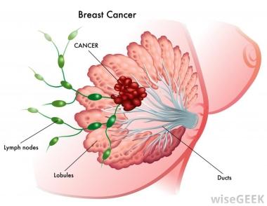 BreastCancerTypes2