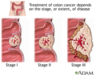 ColonCancerStages