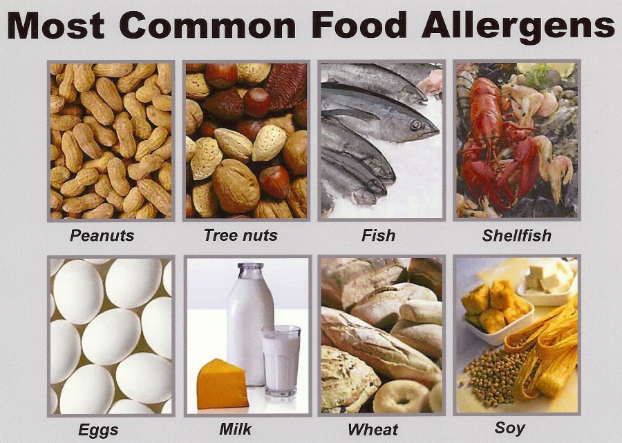 Common food allergies adults photo 233