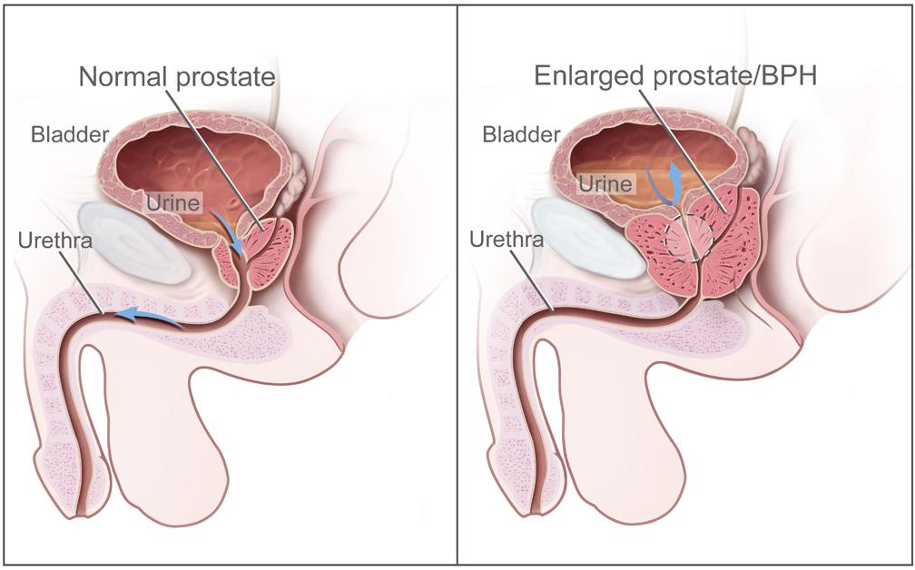 enlarged prostate plant based diet